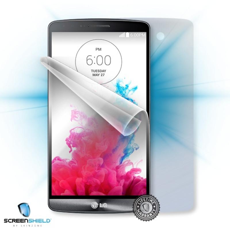 ScreenShield fólie pro LG D722 G3s + tělo